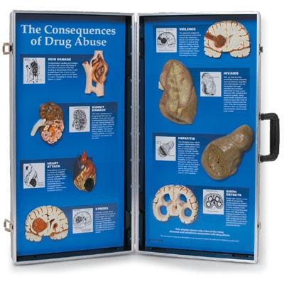 Die Folgen des Drogenmissbrauchs, 3D Schautafel