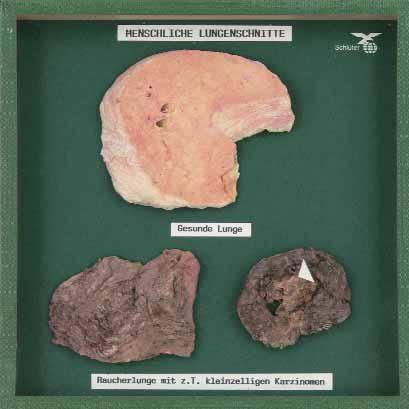 Objektkasten Raucherlunge, Lungenkarzinom und gesunde Lunge