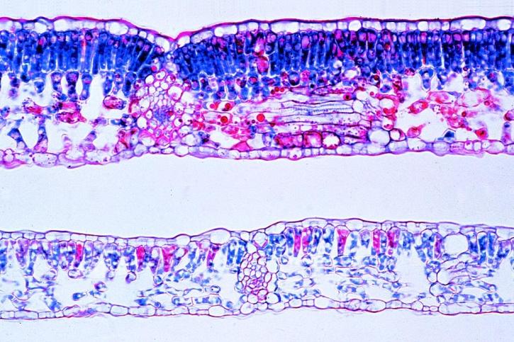Mikropräparat - Sonnen- und Schattenblatt der Buche (Fagus)