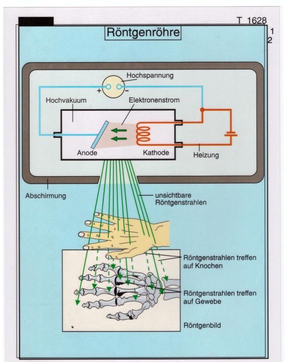Transparentsatz Röntgenröhre