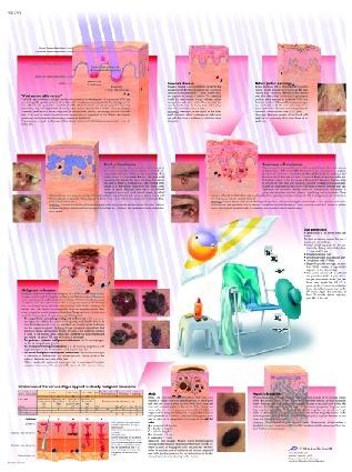 Anatomische Lehrtafel, Hautkrebs