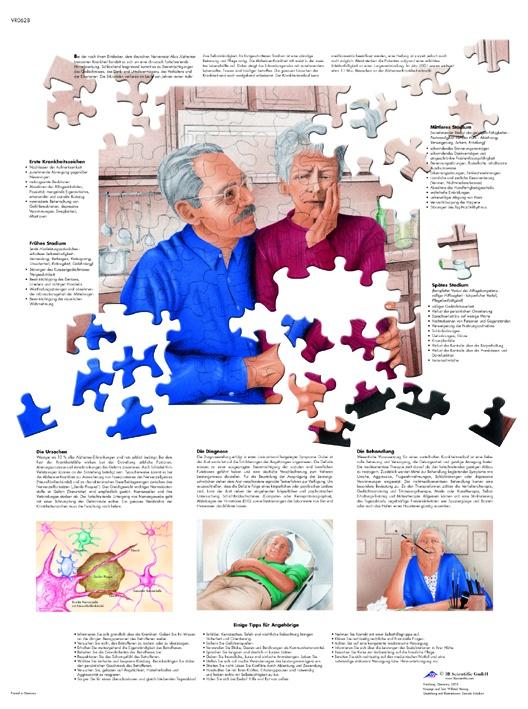 Anatomische Lehrtafel, Alzheimer-Krankheit