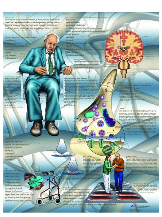 Anatomische Lehrtafel, Parkinson-Krankheit