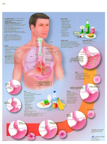 Anatomische Lehrtafel, Reflux-Krankheit
