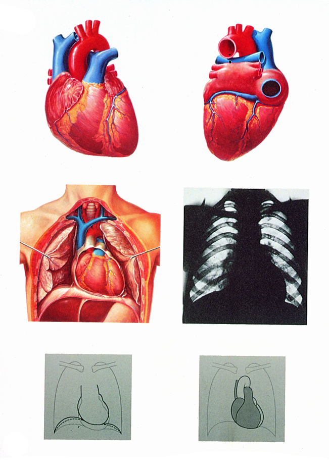 Anatomiekarte, Lehrtafel Das Herz, Anatomie, 84x118 cm, mit ...