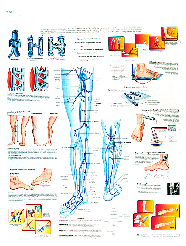 Lehrmittel Anatomische Lehrtafel Krampfadern Varikose 1001371_3B