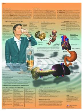 Anatomische Lehrtafel, Alkoholabhängigkeit